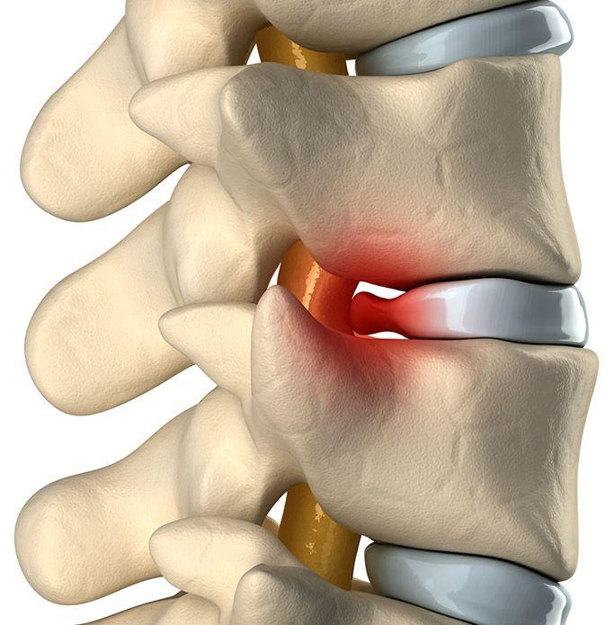 subluxación vertebral quiropractica-cadiz